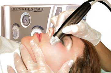 Medical Microdermabrasion